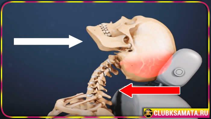 Боли в шее после травмы