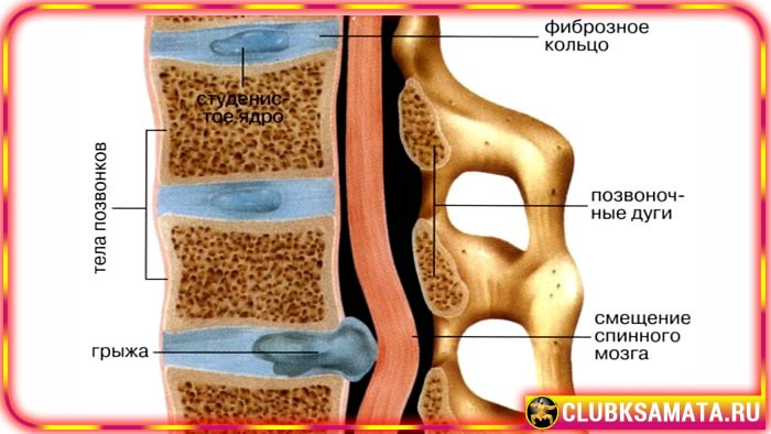 99 1 - Как определить шейную грыжу – рекомендации при грыже межпозвонкового диска