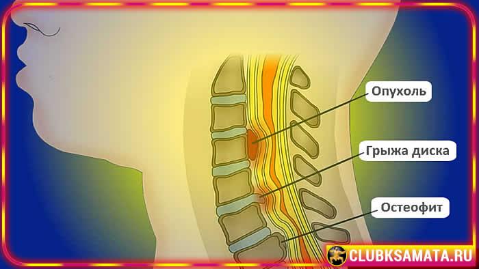 99 - Как разгрузить грудной отдел позвоночника при остеохондрозе – практики Данилы Сусак