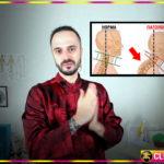 Простые упражнения от холки на шее – как эффективно убрать шейный горб показывает Данила Сусак